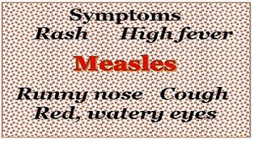 measles update in your office
